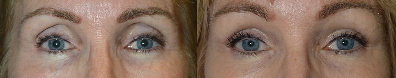 60 year old female, had upper eyelid filler (Belotero) injection to correct sunken hollow eyes from prior blepharoplasty.