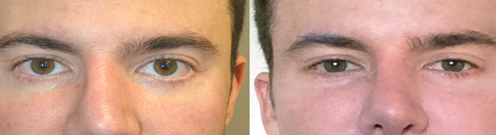38 year old male, with lower eyelid retraction due to previous lower blepharoplasty (by another surgeon), underwent lower eyelid retraction surgery (with alloderm spacer graft), canthoplasty, and tear trough (orbital rim) implant placement. Before and 6 months after surgery results are shown. You can see his written testimonial on RealSelf