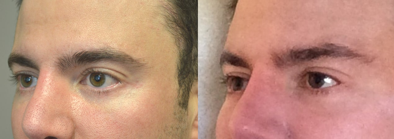 38 year old male, with lower eyelid retraction due to previous lower blepharoplasty (by another surgeon), underwent lower eyelid retraction surgery (with alloderm spacer graft), Canthoplasty, and tear trough (orbital rim) implant placement. Before and 6 months after surgery results are shown. You can see his written testimonial on realself.