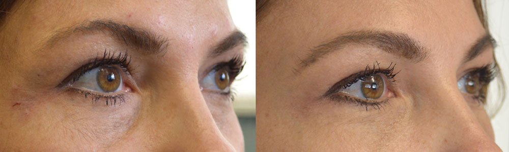 36 year old female, with significant under eye tear trough deformity causing hollowness and dark circles, underwent tear trough eyelid Restylane filler injection. Before and 1 month after photos are shown.