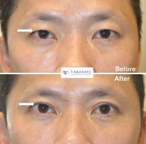 Asian man underwent cosmetic Asian upper blepharoplasty with crease formation. Asian blepharoplasty needs to consider the natural Asian eye shape and eyelid structures to provide natural results. Before and 3 months after cosmetic eyelid surgery photos are shown.