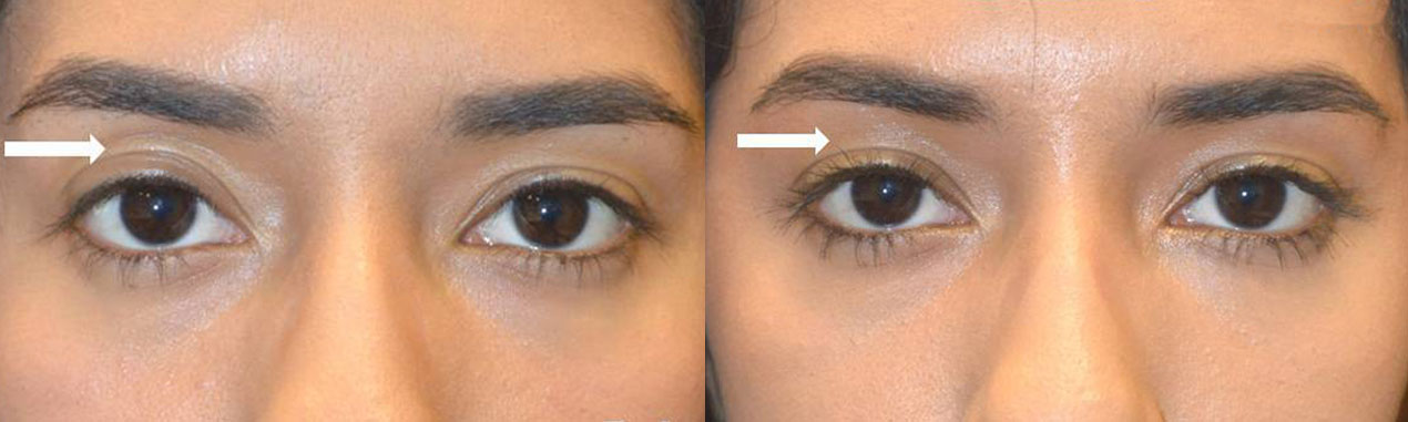 Young woman, complained of upper eyelid asymmetry with hollow sunken right upper eyelid with loose extra skin folds. She received right upper eyelid filler injection. Note improved eye symmetry.