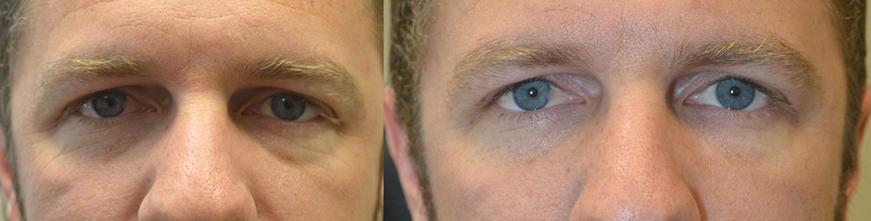 35 year old male, complained of looking tired. Before and 1 month after under eye and cheek filler injection photos are shown..