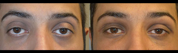 Before (left) Lower eyelid retraction after previous aggressive lower blepharoplasty and 3 months after (right photo) revisional lower eyelid retraction surgery with midface lift, internal graft, and canthoplasty. Note the eyes are more almond shaped.