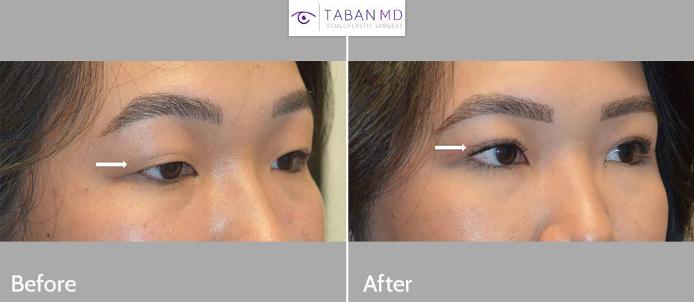 Beautiful young Asian lady, with single mongoloid eyelid, underwent Asian upper blepharoplasty (double eyelid surgery), to create more visible eyelid crease and open eyes.