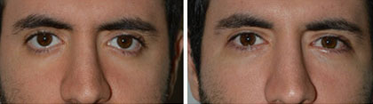 Young male with congenital rounded eyes and bottom eyelid retraction with scleral show who underwent this eye condition surgery with internal Alloderm graft and canthoplasty, resulting in elevation of the lower eye fold in a more natural position. He also had tear trough silicone implants placed.