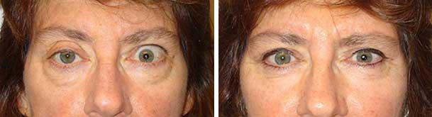 Before (left) and after (right photo) of right ptosis surgery, left upper eye surgery and bilateral lower blepharoplasty.
