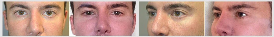 "Young Caucasian man underwent infraorbital silicone implant plus lower eyelid retraction surgery with canthoplasty (""almond eye surgery"")."