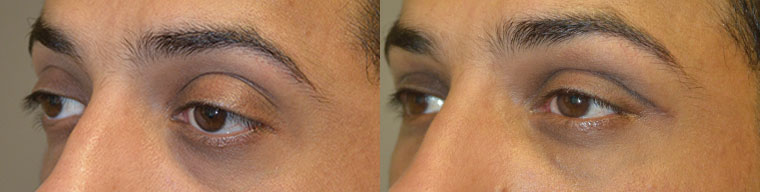 """Young Middle-Eastern male complained of inherited """"frog eyes"""" with bulging eyes, lower eyelid retraction with sclera show, and sad eyes. He underwent cosmetic orbital decompression, lower eyelid retraction surgery, and canthoplasty to give more Almond Eye shape eyes. Before and 3 months postoperative photos are shown. (He could also benefit from upper eyelid ptosis repair which he declined.)"""