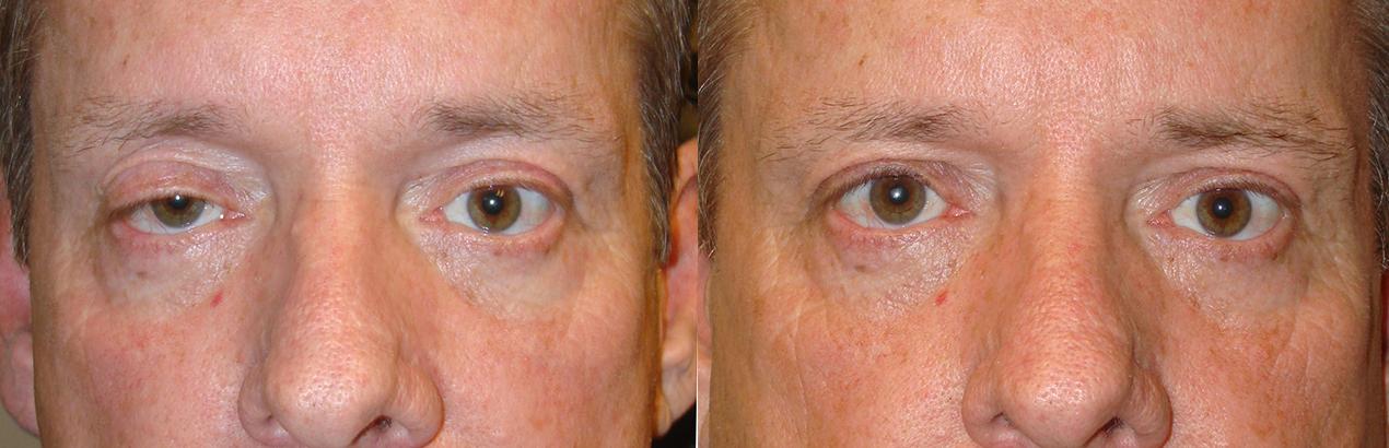 Before eye asymmetry due to right upper eyelid ptosis. After right upper eyelid ptosis surgery with improved eye symmetry.