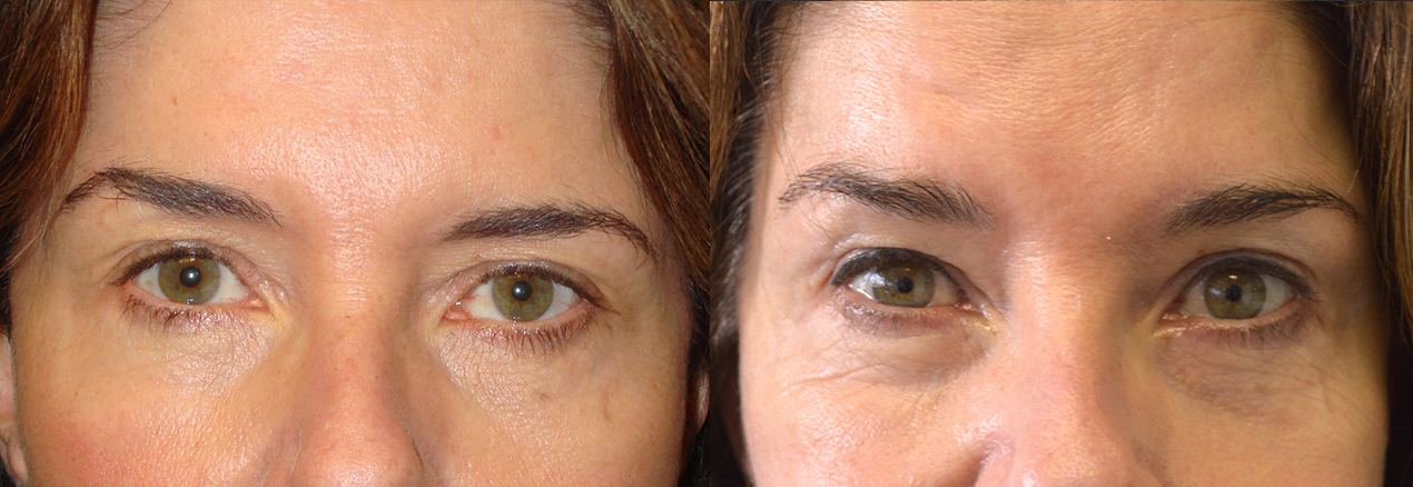 Before eye asymmetry due to uneven eyebrows with right side higher. After asymmetric botox injection to make brows evener.