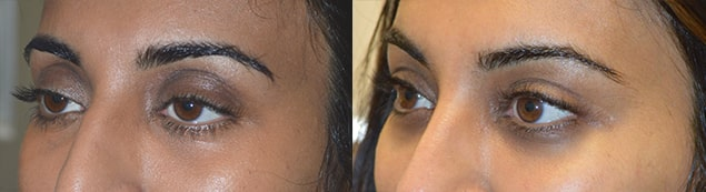 35-year-old Indian female complained of looking tired and older. She underwent scarless internal droopy upper eyelid ptosis surgery and upper eyelid fat injection. Before and 1+ year postoperative photos are shown. Note more open, rested, youthful eye shape change.