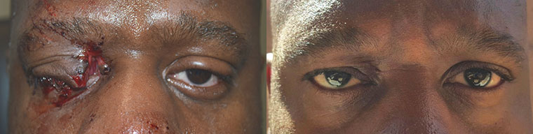 Before (left) and 3 months after (right) eyelid laceration repair.