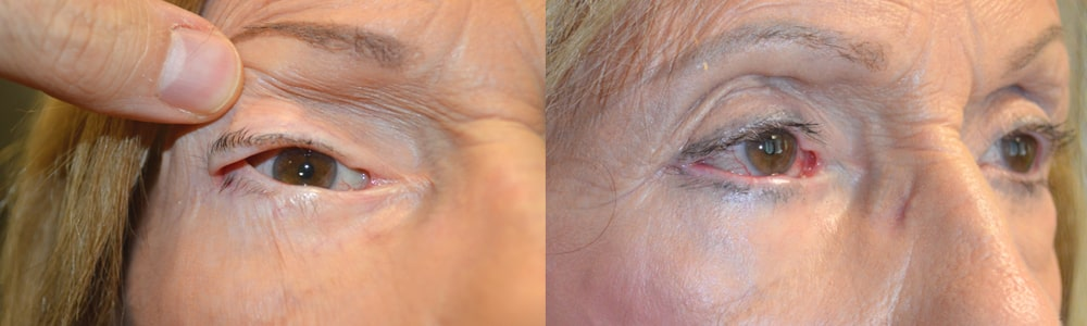 Before (left) and after (right) 86-year-old female, with significant eye irritation from previous canthoplasty, underwent revision right canthoplasty.