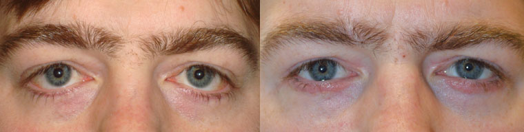 Before (left) revision lower eyelid surgery to raise droopy lower eyelids following two previous procedures from other surgeons. After (right) one month post eyelid reconstruction using skin graft.