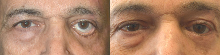 Before (left) middle aged man with severe left lower eyelid retraction after previous lower eyelid surgery. After (right) 3 months post revision lower eyelid retraction surgery with internal alloderm spacer graft and external skin graft.