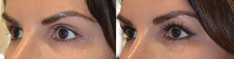 Before (left) young woman with hollow, sunken eyes and dark circles. One month after (right) she underwent Belotero injections in upper eyelids and brows and Restylane in lower eyelids.
