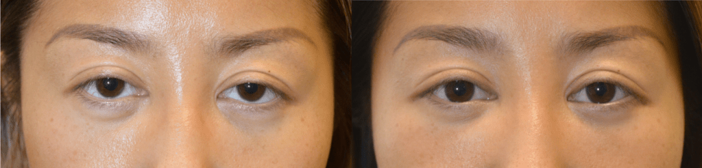 30 year old Asian female, from Shanghai China, with inherited tired and bulging appearing eyes, underwent almond eye surgery with lower eyelid retraction repair, cosmetic orbital decompression, and upper eyelid ptosis surgery. Before and 2 months after eye plastic surgery photos are shown. Note the change in eye shape.