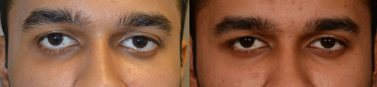 Eye asymmetry due to right eyeball higher than the left. After right customized orbital decompression to lower right eyeball, with improved eye symmetry.