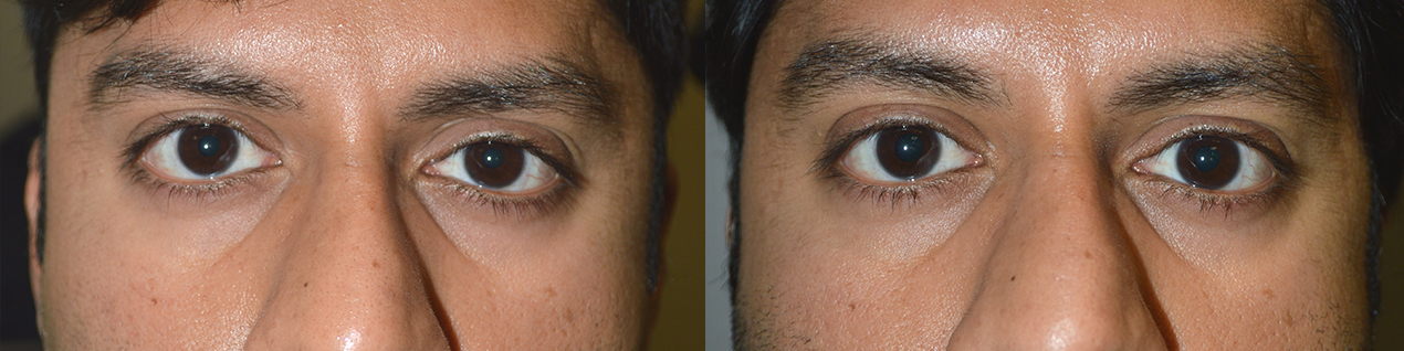 Before eye asymmetry due to mild right upper eyelid retraction. After right upper eyelid retraction surgery with improved eye symmetry.