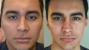 24-year-old male, complained of looking sad and tired due to inherited lower eyelid retraction with negative canthal tilt and droopy upper eyelids (ptosis). He underwent almond eye surgery (lower eyelid retraction surgery using scar-less transconjunctival technique and canthoplasty) and upper eyelid ptosis repair. Before and 3 months after eye plastic surgery photos are shown. Note more upturned, almond shaped or fox eyes appearance with positive canthal tilt.