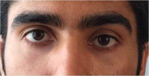 Eye asymmetry due to right orbit and eyeball higher than the left eye.