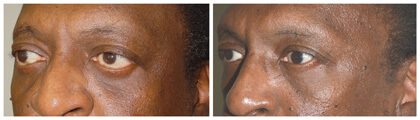 Middle age male, with thyroid eye disease, who underwent eye socket surgery followed later by lower eyelid retraction surgery and canthoplasty.