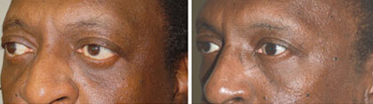 Middle age male, with thyroid eye disease, who underwent orbital decompression followed later by bottom eyelid retraction surgery and Canthoplasty.