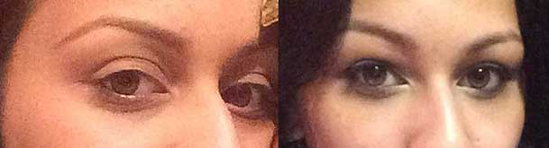 Before (left) and 3 months after (right) cosmetic eye socket surgery and fat injection around eyes
