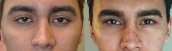 24 year old male, complained of looking sad and tired due to inherited lower eyelid retraction with negative canthal tilt and droopy upper eyelids (ptosis). He underwent almond eye surgery (lower eyelid retraction surgery using scar-less transconjunctival technique and canthoplasty) and upper eyelid ptosis repair. Before and 3 months after eye plastic surgery photos are shown.