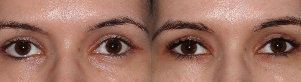 Young female complained inherited lower eyelid retraction with sclera show and eye asymmetry and rounded eyes. She underwent Almond Eye Surgery including lower eyelid retraction surgery (with soof lift, no spacer graft) and canthoplasty to create more attractive almond shaped eyes. Before and 6 months after cosmetic eyelid surgery photos are shown.