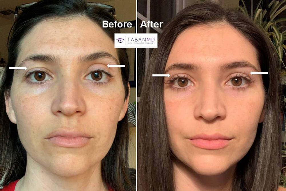 Beautiful young woman with upper eyelid asymmetric underwent customized upper blepharoplasty and upper eyelid filler injection. Note improved eye symmetry.