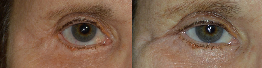 Before (left) Middle age woman with right lower eyelid retraction after previous lower blepharoplasty, now needing revision cosmetic surgery. After (right) 4 months after this eye condition surgery with internal alloderm graft, midface lift, canthoplasty, giving more natural almond shape eye appearance. (later she would also benefit from ptosis surgery and brow lift).