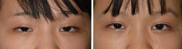 Before (left) and 1-month after (right) bilateral medial epicanthoplasty.