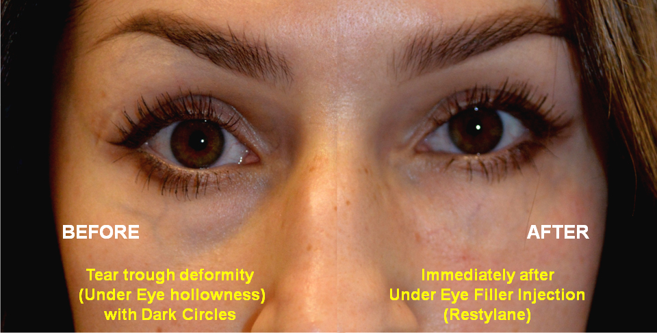 """30 year old female, with under eye hollowness and dark circles from tear trough deformity complained of """"looking tired"""" and makeup wasn't enough. She underwent under eye filler (Restylane) injection. Before and Immediately After eyelid filler injection photos are shown, superimposed next to each other."""