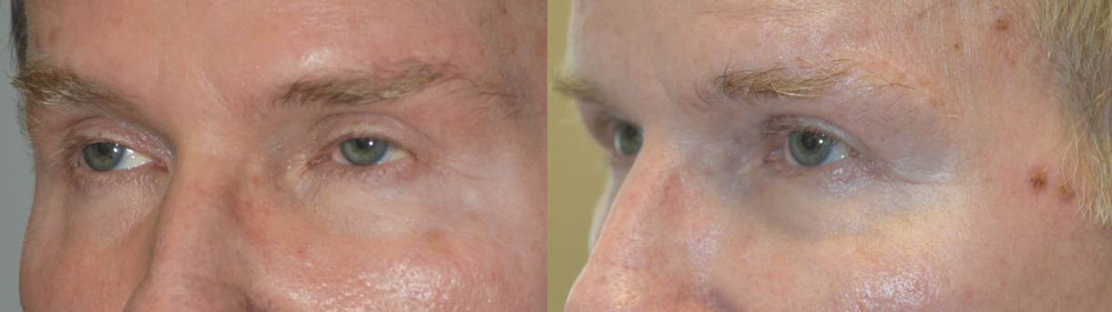 60 year old male, with history of aggressive upper blepharoplasty by another surgeon, complained of sunken hollow upper eyelids with unnatural eye appearance. He received hyaluronic acid gel filler injection in upper eyelids. Before and 3 YEARS after upper eyelid filler injection photos are shown.