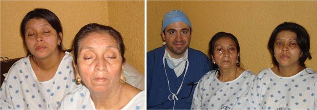 Ptosis Eye Surgery Humanitarian