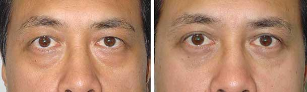 Before (left) and after (right) Asian upper blepharoplasty and lower blepharoplasty.