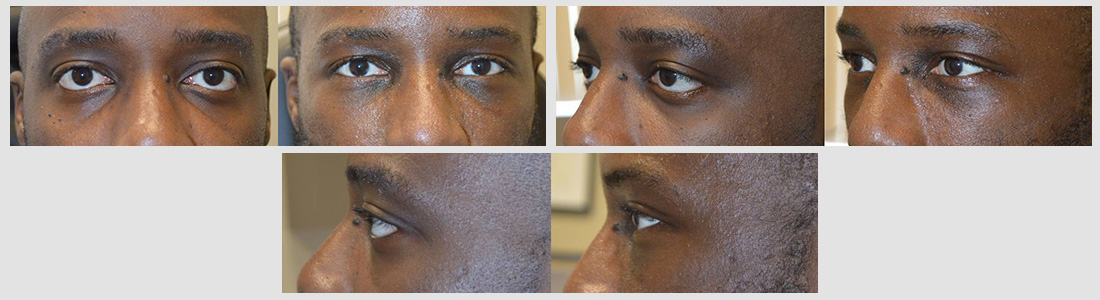 Young man, with genetic protruding eyes and sad tired eye appearance underwent cosmetic orbital decompression (bulging eye surgery), lower eyelid retraction surgery with canthoplasty (almond eye surgery) and infraorbital rim silicone implant. Note improved eye appearance.