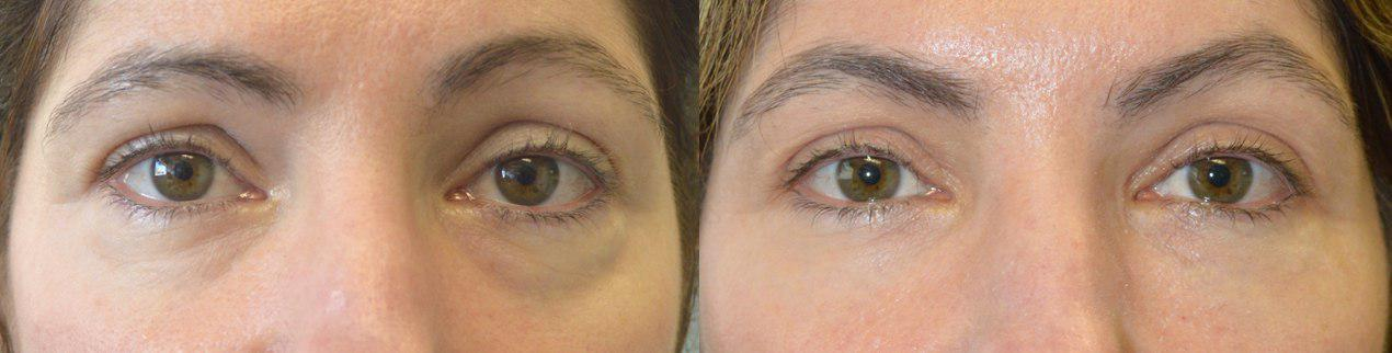 Before (left) and after (right) 45-year-old female, complained of under eye bags and dark circles. She underwent nonsurgical treatment using Restylane hyaluronic acid gel filler injection in the hollow tear trough area under eyes..