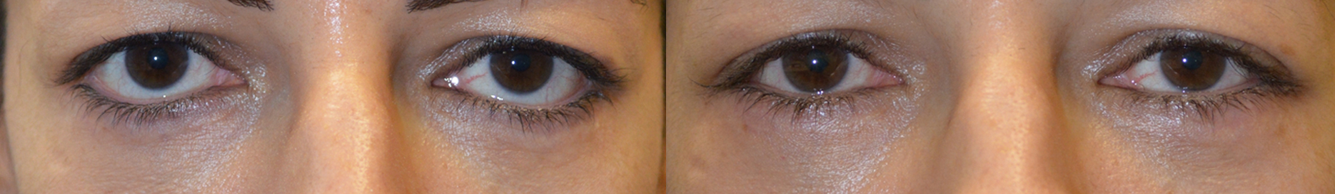 Before (left) and after (right) 44-year-old female, with post-blepharoplasty lower eyelid retraction with sclera show and loss of natural eye shape, underwent corrective revision lower eyelid surgery, namely lower eyelid retraction repair, using internal eyelid approach with soof lift and alloderm spacer graft and canthoplasty.