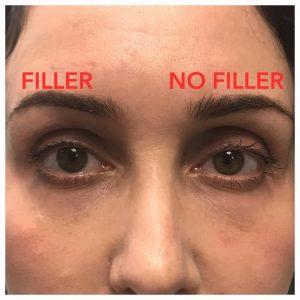 Beverly Hills Injectable Sunken Eyelid Treatment