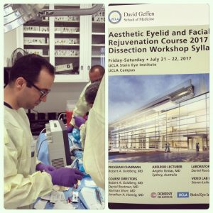 Los Angeles Aesthetic Eyelid and Facial Rejuvenation Course 2017 Dissection Workshop Dr. Taban