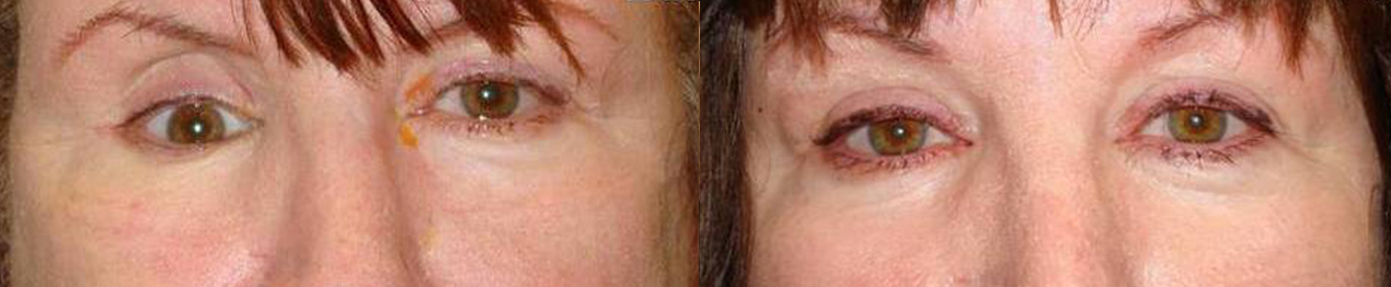 Obvious eye asymmetry due to the right sunken eye. After right orbital implant placement with improved eye.