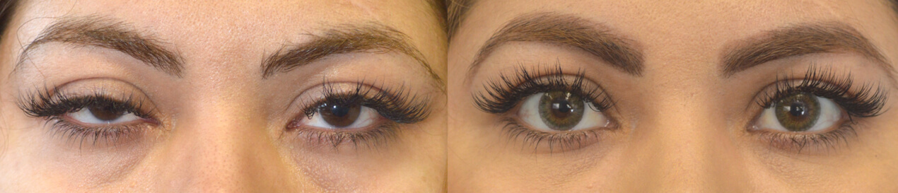 Before (left) and after (right) 36-year-old patient underwent scar-less upper eyelid ptosis surgery using hidden inside eyelid approach for asymmetrical upper eyelid ptosis.
