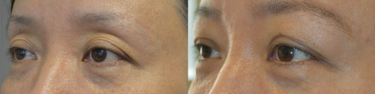 Before (left) middle age Asian female with deflated, saggy upper eyelid, excess wrinkles, and upper eyelid skin folds. One month after (right) she underwent non-surgical upper eyelid lift using Belotero Filler injection in upper eyelids and under eyebrows.