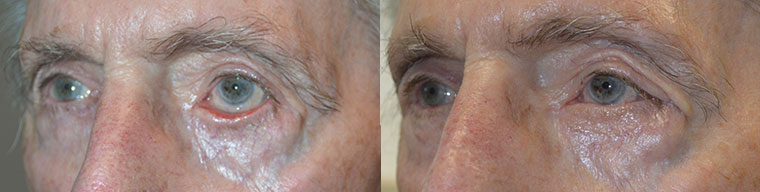 Before (left) 70+ year old male with left facial/eyelid paralysis from Bells palsy with paralytic left lower eyelid ectropion. After (right) underwent left lower eyelid ectropion surgery with skin graft.