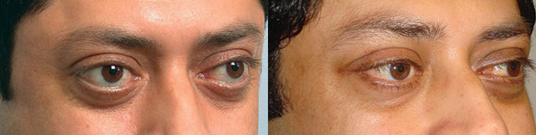 Before (left) Middle age Indian male with inherited bulgy eyes. 3 months after (right) he underwent bilateral cosmetic orbital decompression surgery.