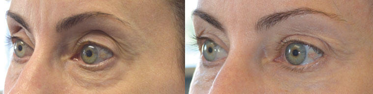 Before (left) middle age woman with hollow, sunken eyes, dark circles, and excess skin folds. One month after (right) she under with Belotero injections in upper eyelids and brows and Restylane injected under her eyes.