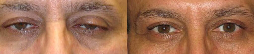 Before (left) and 3 months after (right) cosmetic upper eyelid ptosis surgery (internal approach).